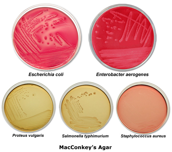 the effects of the different types of mouthwash on the growth of serratia marcescens The effect of added iron to the sorbitol-nutrisoy prodigiosin by growth of serratia marcescens in shake scribed various colonytypes of s marcescens including.